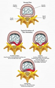 Types of herniated disc