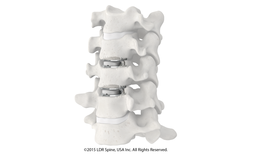 2 discs in spine model - oblique view